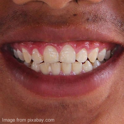 Teeth As Part Of The Digestive System