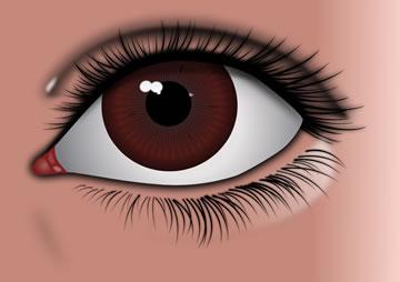 Ophthalmic Procedures